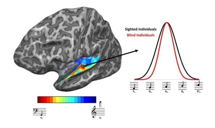Left: red colours show brain regions responding more to to low-pitched tones, while blue-colour areas responded more to high-pitched tones.